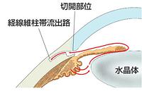 <線維柱帯切開術 trabeculotomy・360°suture trabeculotomy・μhook ab interno trabeculotomy >