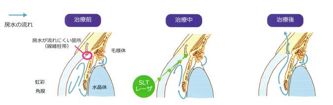 <SLT:Selective laser trabeculoplasty 選択的レーザー線維柱帯形成術>