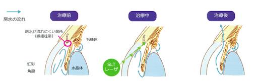 <LI:laser iridotomy レーザー虹彩切開術 >