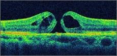 黄斑円孔の詳細