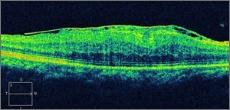 黄斑前膜、黄斑上膜の詳細