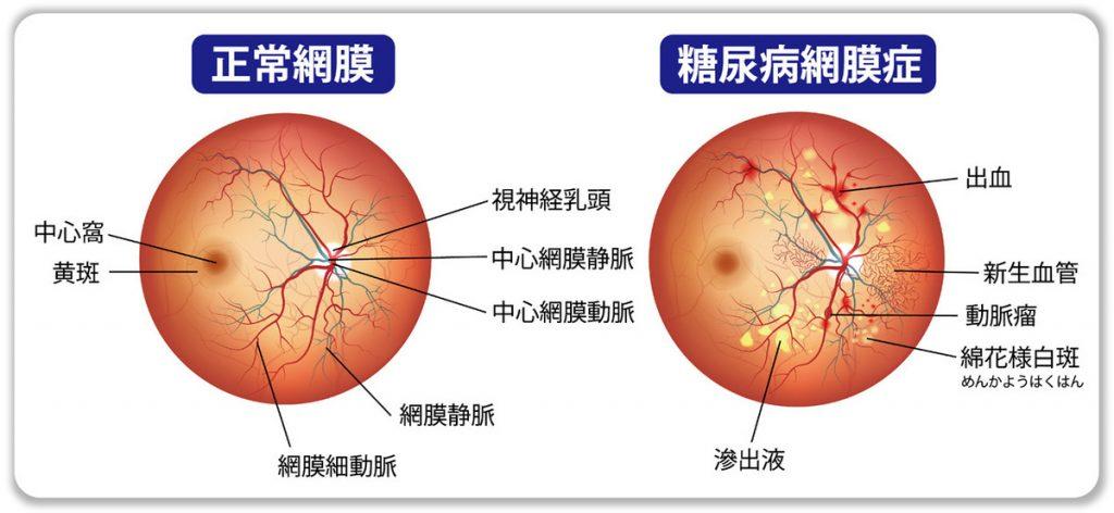 増殖糖尿病網膜症の詳細