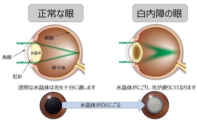 正常な目・白内障の目