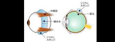 裂孔原性網膜剥離の写真